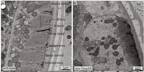 A figure that shows two images. The image on the left shows the musculature of a wild type worm. The tissues are organized such that the mitochondria, basal lamina, sacromeres, A band, M line and muscle belly can be seen (each are denoted with a small black line). The image on the right shows the musculature of a worm with muscular dystrophy. There is not clear organization of the tissue and no parts are labeled.