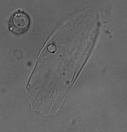 A picture of a lamellocyte cell under a microscope. The cell looks amoeba-like and gelatinous.